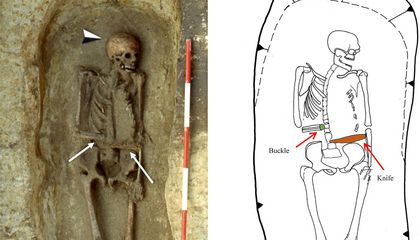 This Medieval Man Used a Knife as a Prosthetic Limb