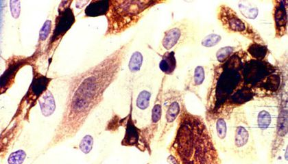 Now We Know Just How Herpes Infects Human Cells