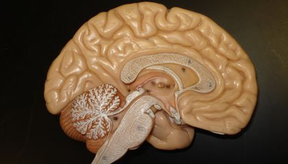 Here's How Neuroscientists in the 1800s Studied Blood Flow in the Brain