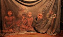 Cambodia children with malaria