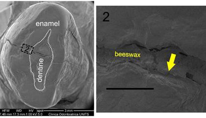 6,500-Year Old Beeswax May Be Oldest Known Dental Filling