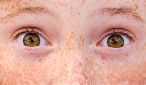 Preview thumbnail for video'Ask Smithsonian: What's a Freckle?