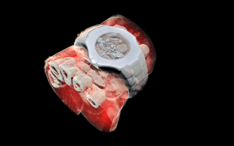 Check Out These Awesome New 3D, Full-Color X-Rays | Smart ...