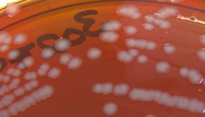 Gonorrhea Mutates Into Treatment-Resistant Superbug