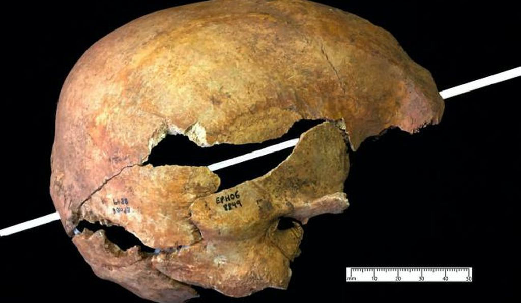 An arrow pierced the top of this man's right eye and exited through the back of his skull.