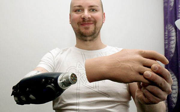 Three men get bionic hands
