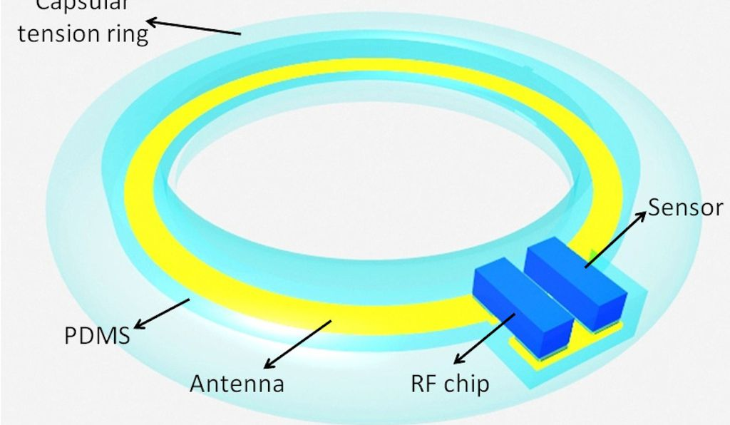 Researchers designed the sensor to fit easily inside existing cataract implants.