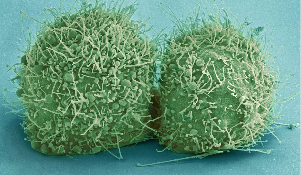 A scanning electron micrograph of just-divided