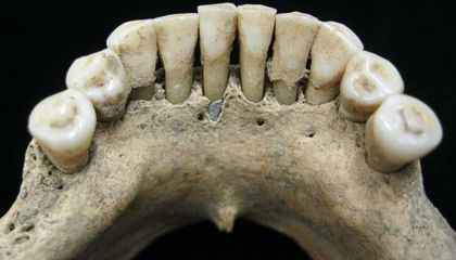 Blue Pigments in Medieval Woman's Teeth Suggest She Was a Highly Skilled Artist