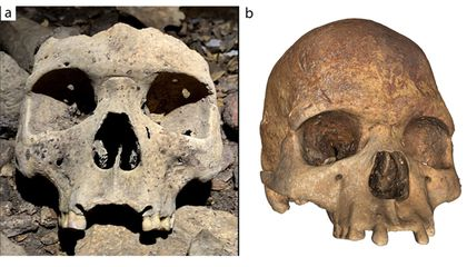 Why Are These Medieval-Era Skulls Found in Gabon Missing Their Front Teeth?