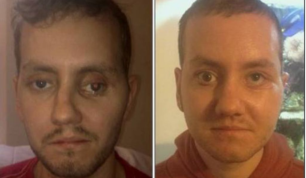 After a motorcycle accident, Stephen Power's face was still badly damaged (left) even after several surgeries—until a medical team used 3D printing to create models and implants that helped rebuild the 29-year-old's face (right) to more closely resemble his appearance before the accident.