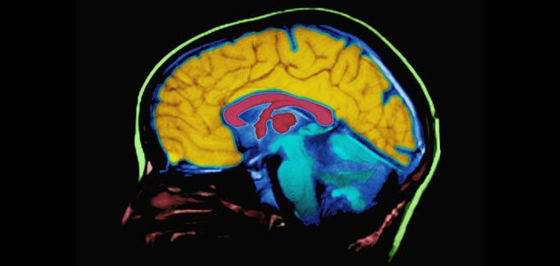 Top Ten Myths About The Brain Science Smithsonian