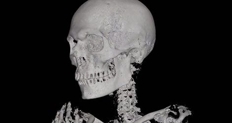 20110913092004ATM-mummy-CT-scan-470.jpg