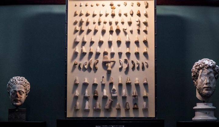 What a Cabinet of Fake Noses Tells Us About Art Preservation