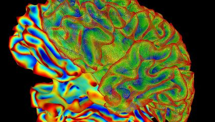 New Study Calls the Reliability of Brain Scan Research Into Question