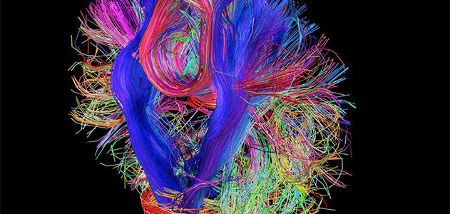 If Genes Dont Turn Off Brains Wiring >> Mapping How The Brain Thinks Innovation Smithsonian