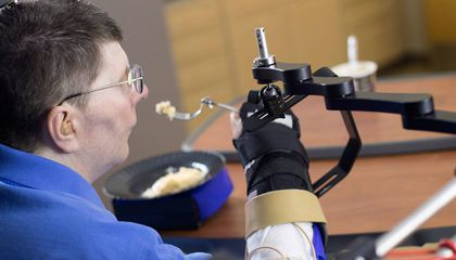 New Device Allows Paralyzed Man to Move His Arm With His Mind