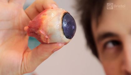 If You Like Gore, You'll Like Watching This Eyeball Get Dissected