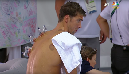 Cupping Isn't the Only Strange Tactic Olympic Athletes Use to Get a Boost