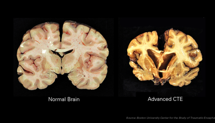 Disease Found in 99 Percent of Brains Donated by NFL Families