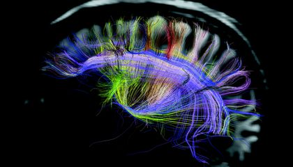 Animal Brains, More Beautiful Than You Could Ever Imagine