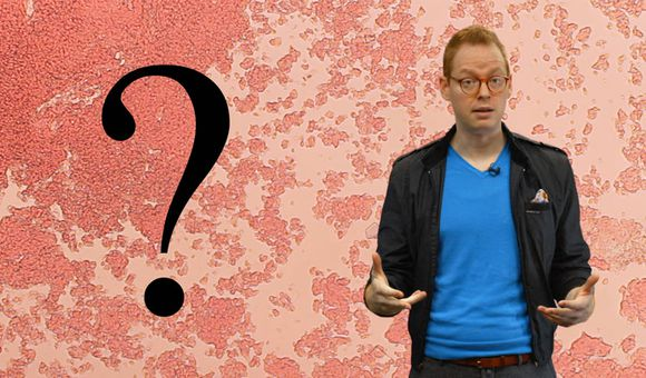 Preview thumbnail for video'Ask Smithsonian: How Does Skin Heal?