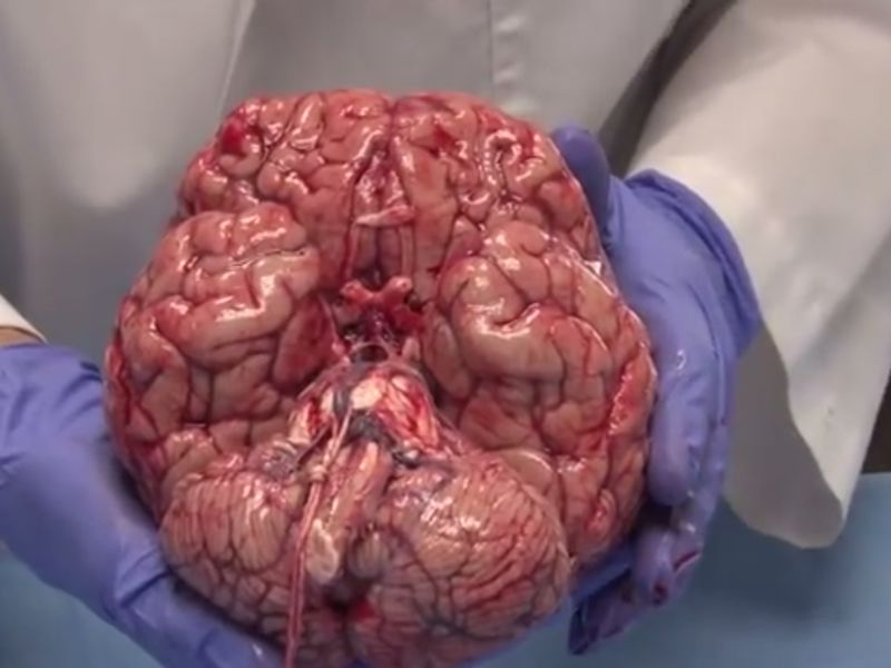 Fresh Brains Are Way Squishier Than You Thought Smart News