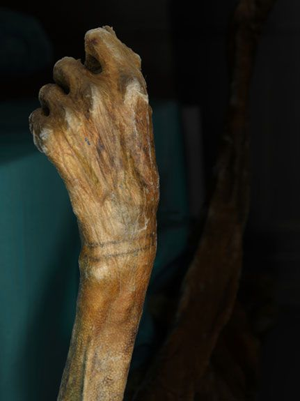 Bracelet-like tattoo of the 5,300-year-old Iceman