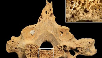 This 3,000-Year-Old Human Skeleton Reveals the Earliest Known Example of Cancer