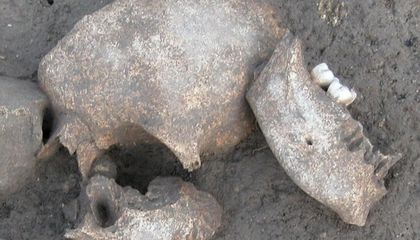 It's True: Ancient Gauls Embalmed the Severed Heads of Their Enemies