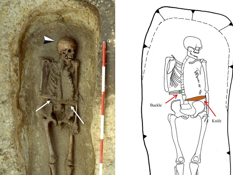 This Medieval Man Used a Knife as a Prosthetic Limb Micarelli-5
