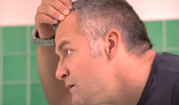 Preview thumbnail for video'Ask Smithsonian: Does Stress Turn Your Hair Gray?