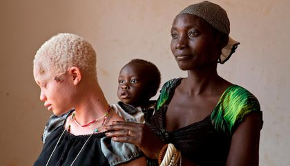 Where Albinism Means Being Targeted for Murder or Dismemberment