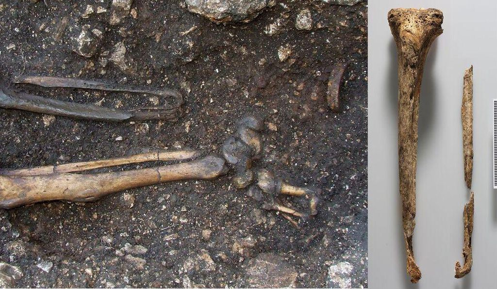 A closer view of the man's missing leg, where the iron ring used as part of his prosthetic is visible (left). The tibia and fibula (right).