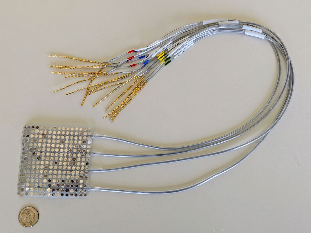 Brain Implant Device Allows People With Speech Impairments