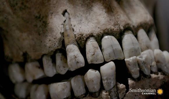 Preview thumbnail for video'Gladiator Teeth Reveal Signs of Infant Malnourishment
