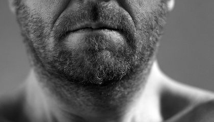 Facial Hair Transplants Are Growing in Popularity