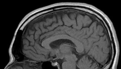 Four Months After a Concussion, Your Brain Still Looks Different Than Before