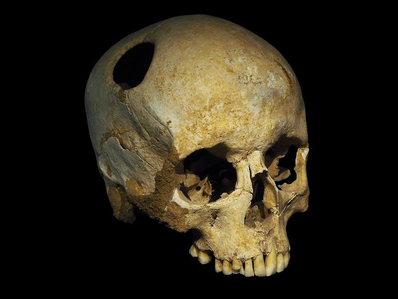 Trepanated_skull_of_a_woman-P4140363-black-WR.jpg