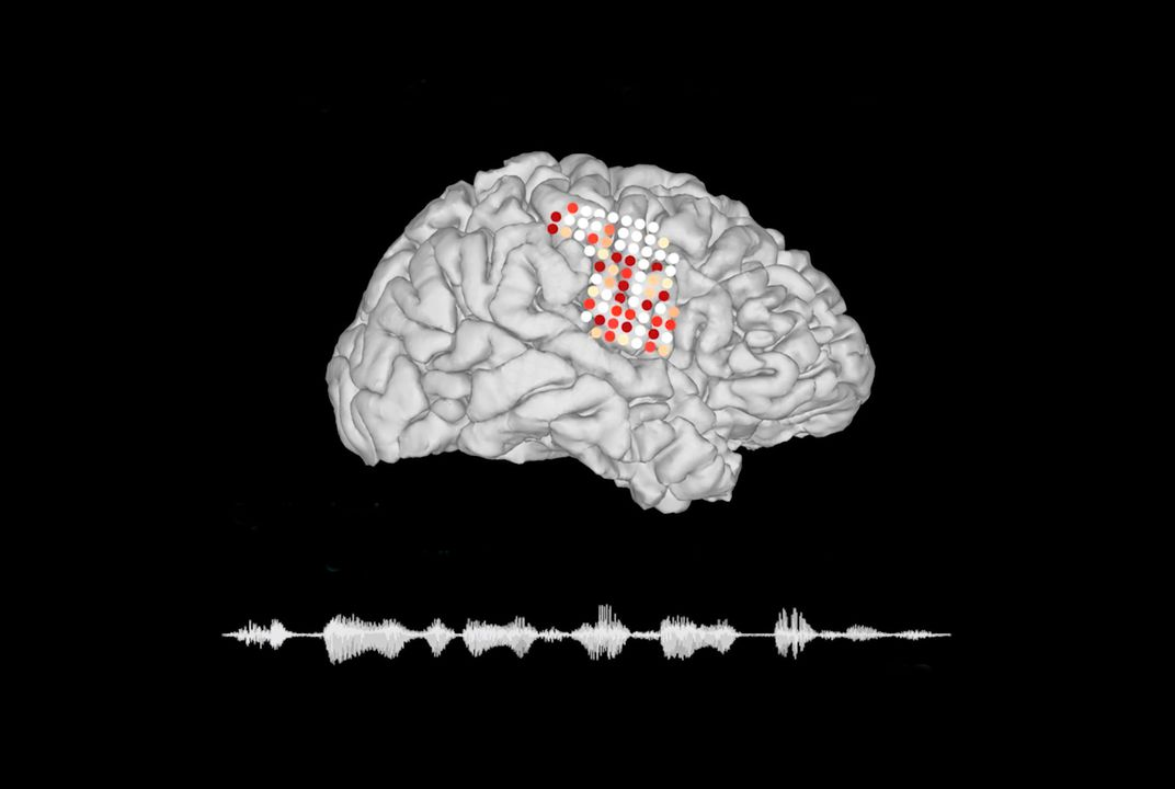 Brain Implant Device Allows People With Speech Impairments to Communicate With Their Minds
