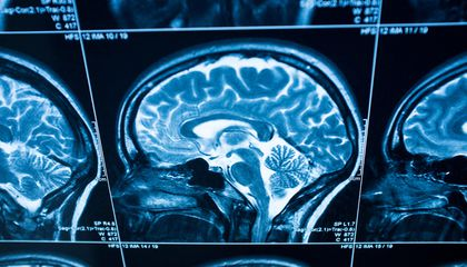 """""""Hidden Brain"""" Podcast Will Make You Think Twice About Your Unconscious Mind"""