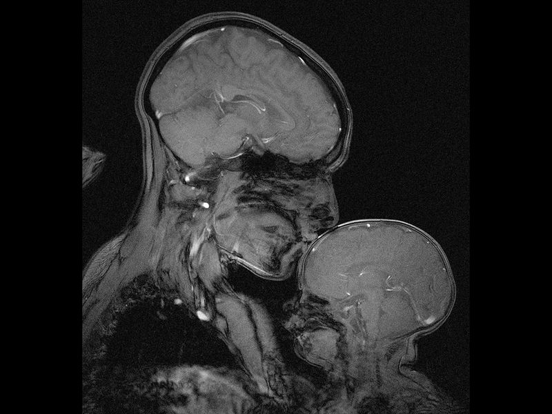 Why I Captured This Mri Of A Mother And Child Science Smithsonian