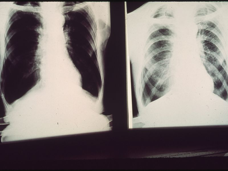 Black lung x-ray