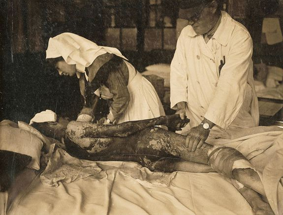 A World War 1 soldier being treated for mustard gas.