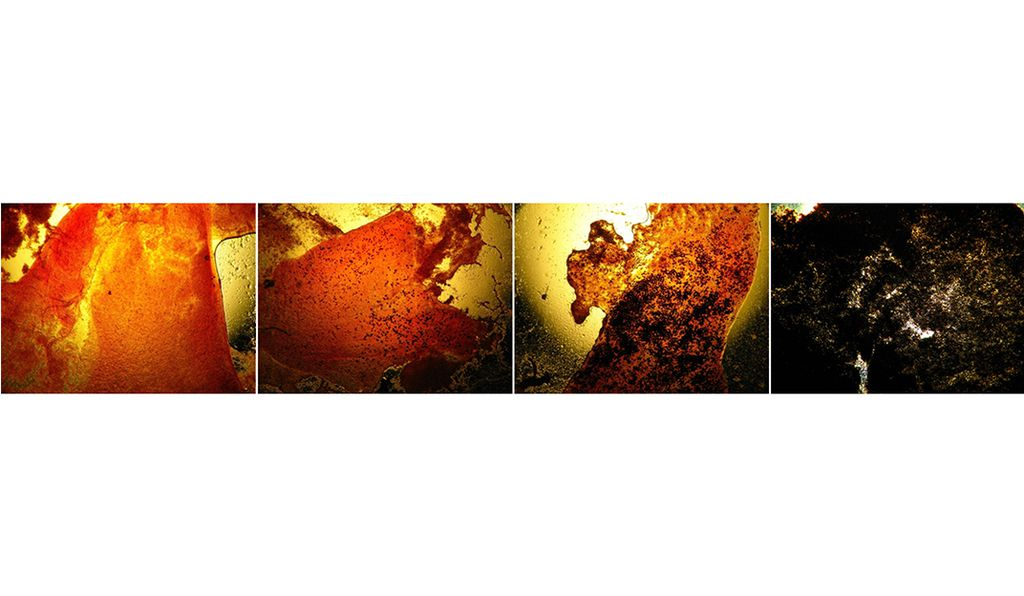A spectrum of slides shows the health of an oyster suffering from the varying intensities of Dermo (from left to right, healthy to severely infected) as the <em>Perkinsus parasite</em> multiplies