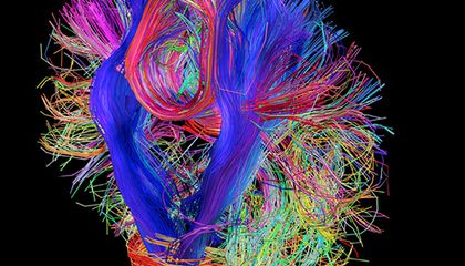 Mapping How the Brain Thinks