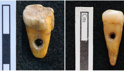 Archaeologists Unearth Beads Made of Human Teeth in Ancient Turkish City