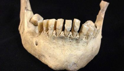 Prehistoric Farmers' Teeth Show Humans Were Drinking Animal Milk 6,000 Years Ago