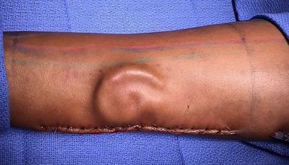 Doctors 'Grow' Ear for Transplant in Patient's Forearm
