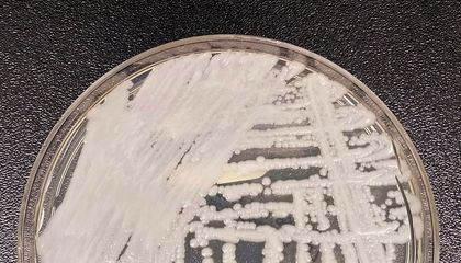 CDC Reports Several Cases of Drug-Resistant Fungal Infection in Two U.S. Cities